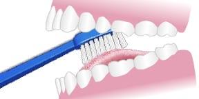 illustration of brushing the tongue