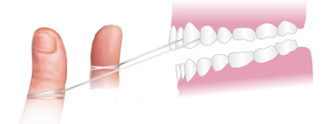 illustration of flossing front teeth