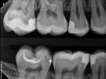 digital x-ray image