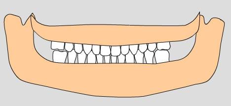 illustration of permanent teeth, 10-12 years
