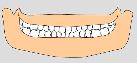 illustration of permanent teeth, 17-21 years