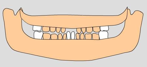 illustration of permanent teeth, 6-7 years