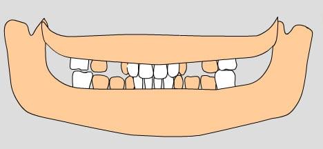 illustration of permanent teeth, 8-9 years