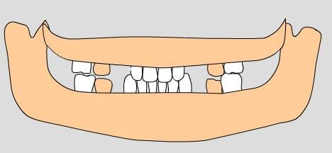 illustration of permanent teeth, 9-10 years